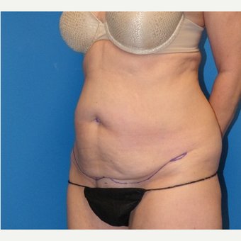 Tummy Tuck before 3807181