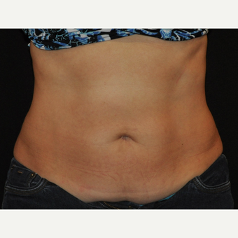 35-44 year old woman treated with CoolSculpting of the mid abdomen after 3476707