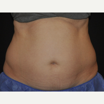 35-44 year old woman treated with CoolSculpting of the mid abdomen before 3476707