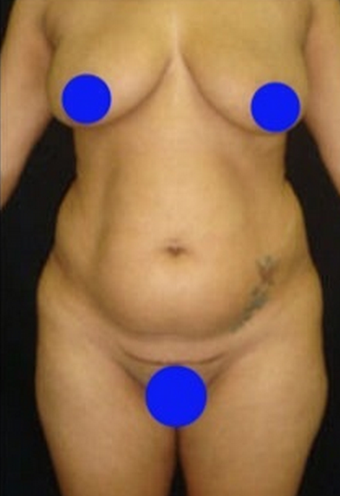25-34 year old woman treated with Liposculpture before 1765879