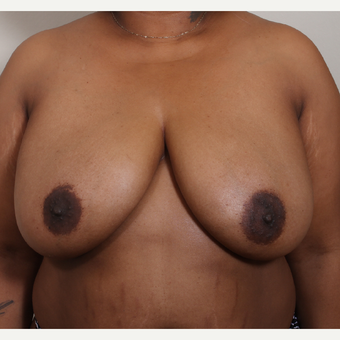 25-34 year old woman treated with Breast Reduction before 3280182