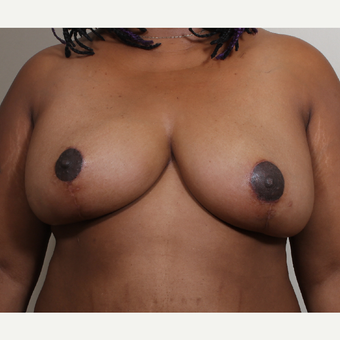 25-34 year old woman treated with Breast Reduction after 3280182