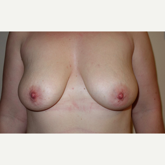 25-34 year old woman treated with Breast Lift with Implants before 3031269