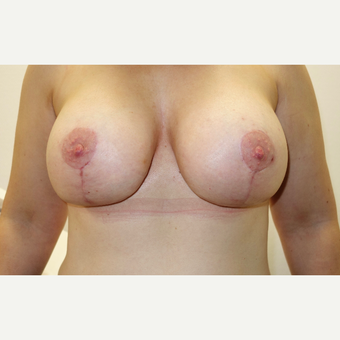 25-34 year old woman treated with Breast Lift with Implants after 3031269