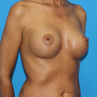 35-44 year old woman treated with Breast Augmentation after 3201558