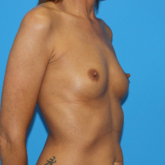 35-44 year old woman treated with Breast Augmentation before 3201558