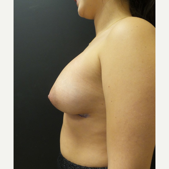 25-34 year old woman treated with Breast Augmentation after 3566225