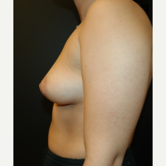 25-34 year old woman treated with Breast Augmentation before 3566225