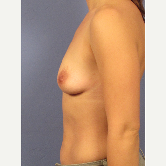25-34 year old woman treated with Breast Augmentation before 3106263