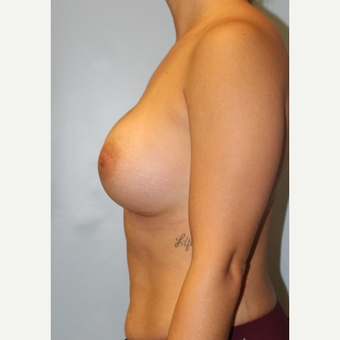 25-34 year old woman treated with Breast Augmentation after 3106263
