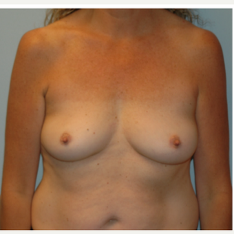 48 year old woman treated with Breast Augmentation before 3102870