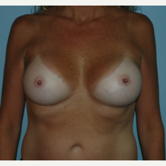 48 year old woman treated with Breast Augmentation after 3102870