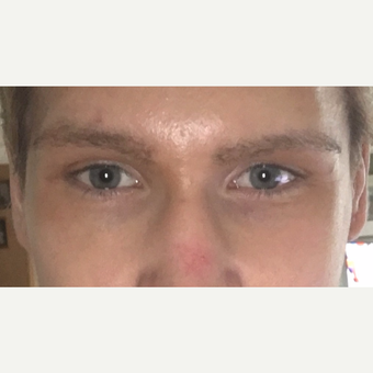 27 year old, with inherited droopy lower eyelids with sclera show, underwent Almond Eye Surgery. after 3789523