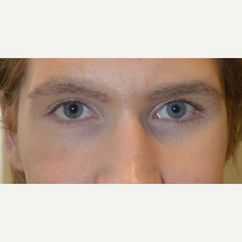27 year old, with inherited droopy lower eyelids with sclera show, underwent Almond Eye Surgery. before 3789523