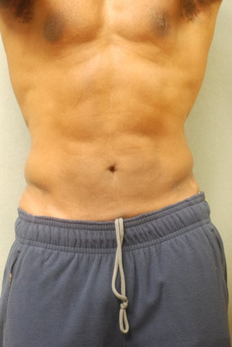SmartLipo after 356657