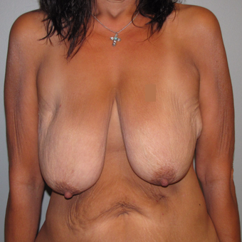 45-54 year old woman treated with Breast Lift before 3583923