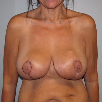 45-54 year old woman treated with Breast Lift after 3583923