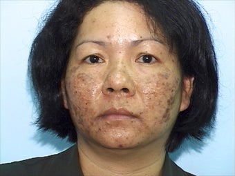 Skin Treatment Using Obagi NuDerm System before 1036745