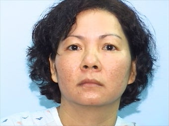 Skin Treatment Using Obagi NuDerm System after 1036745