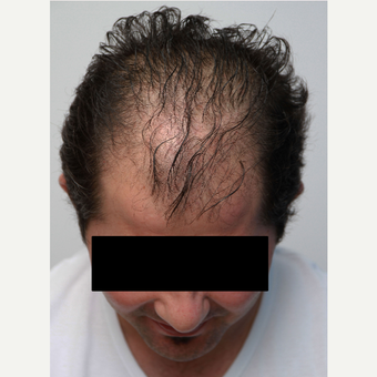 35-44 year old man treated with Organic Hair Transplant before 3172530