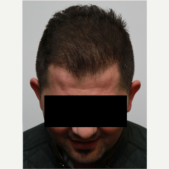 35-44 year old man treated with Organic Hair Transplant after 3172530