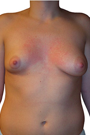 Tuberous Breast Reconstruction and Augmentation before 330636