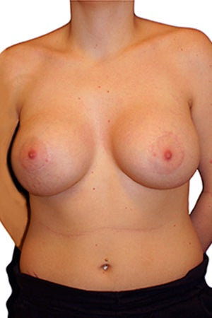 Tuberous Breast Reconstruction and Augmentation after 330636