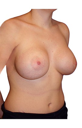 Tuberous Breast Reconstruction and Augmentation 330636