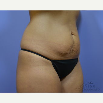 25-34 year old woman treated with Tummy Tuck before 3422044