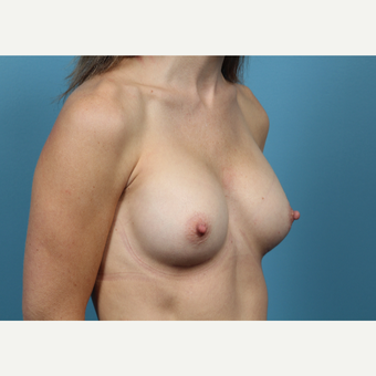 35-44 year old woman treated with Breast Augmentation after 3523274