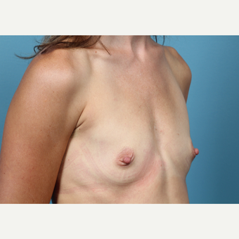 35-44 year old woman treated with Breast Augmentation before 3523274
