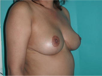 6 Month Post Operative Breast Reduction 1112403