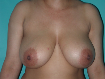 6 Month Post Operative Breast Reduction before 1112403