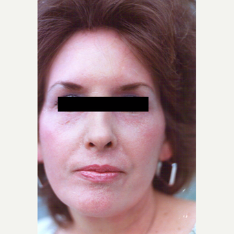45-54 year old woman treated with Chemical Peel after 3543760