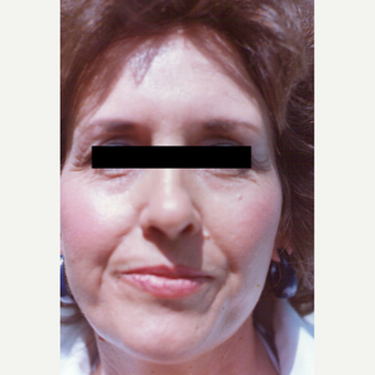 45-54 year old woman treated with Chemical Peel before 3543760