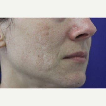 Laser Resurfacing before 1807021