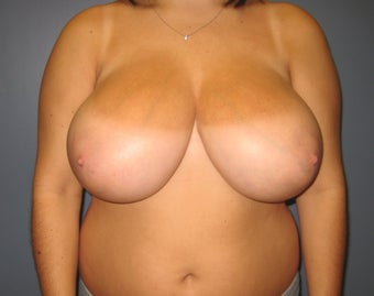 Breast reduction before 480038