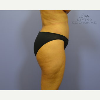 35-44 year old woman treated with Liposuction after 3391607