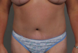45-54 year old woman treated with Tummy Tuck after 3287377
