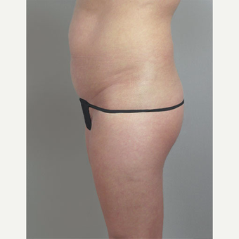 25-34 year old woman treated with Brazilian Butt Lift after Tummy Tuck before 3213392