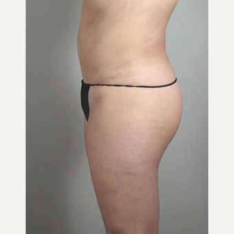 25-34 year old woman treated with Brazilian Butt Lift after Tummy Tuck after 3213392
