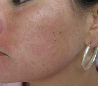 Acne scarring treated with filler after 821646