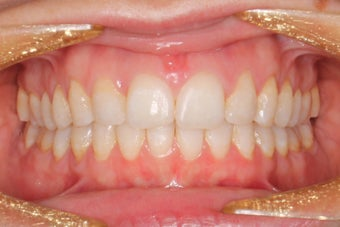 38 Year Old Female Braces after 1305080