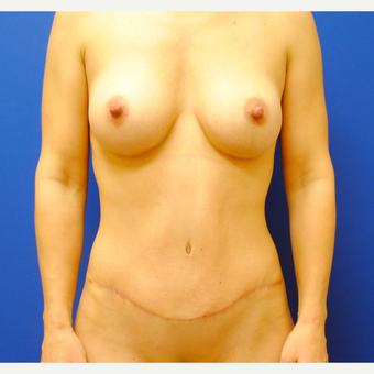 35-44 year old woman treated with Mommy Makeover after 3299885