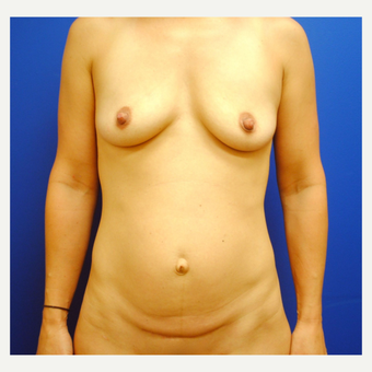 35-44 year old woman treated with Mommy Makeover before 3299885