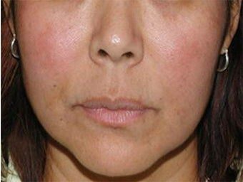 Cosmelan for Melasma after 113208
