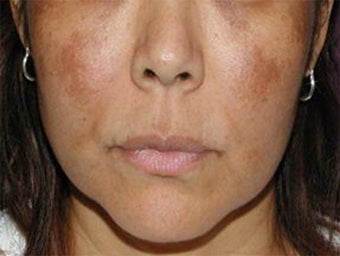 Cosmelan for Melasma before 113208