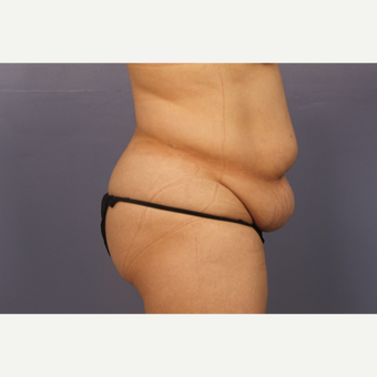 35-44 year old woman treated with Drainless Tummy Tuck