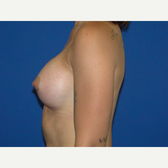 400 cc Silicone Breast Implants after 3776082