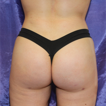 18-24 year old woman treated with Brazilian Butt Lift after 3452827